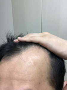 AGA治療 14日目