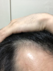 AGA1治療 252日目