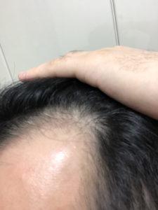 AGA治療 252日目